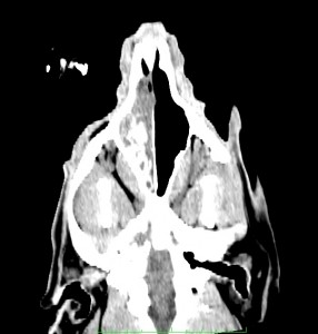 CT coronal像